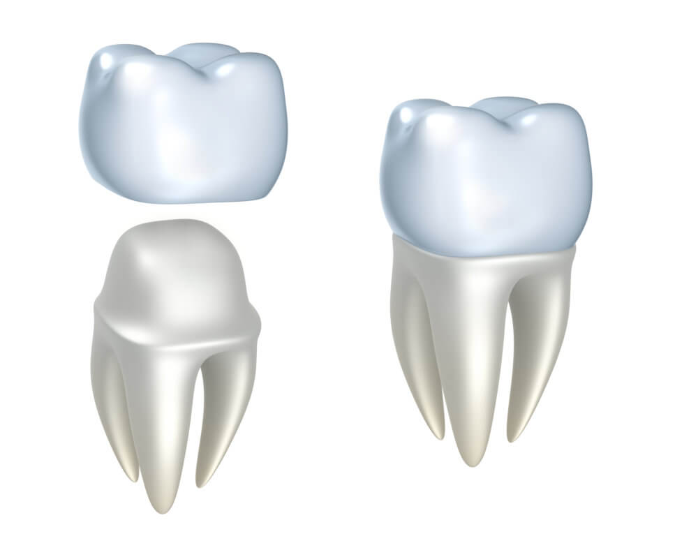 Brickell Dental Associates Dental Crowns