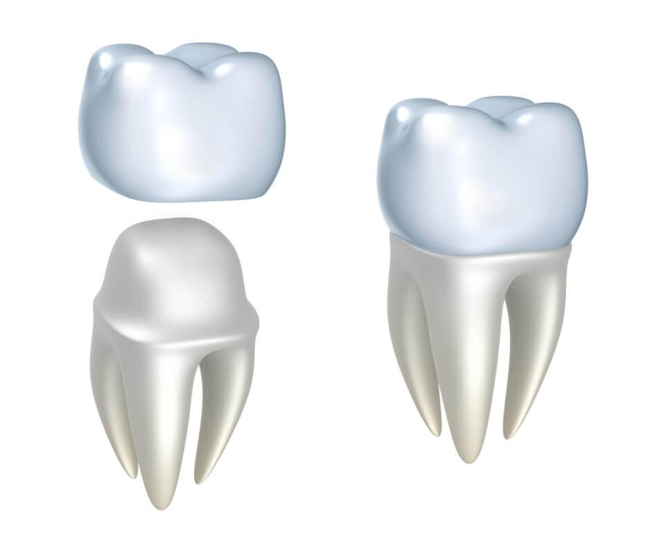 Brickell Dental Associates Dental Crowns
