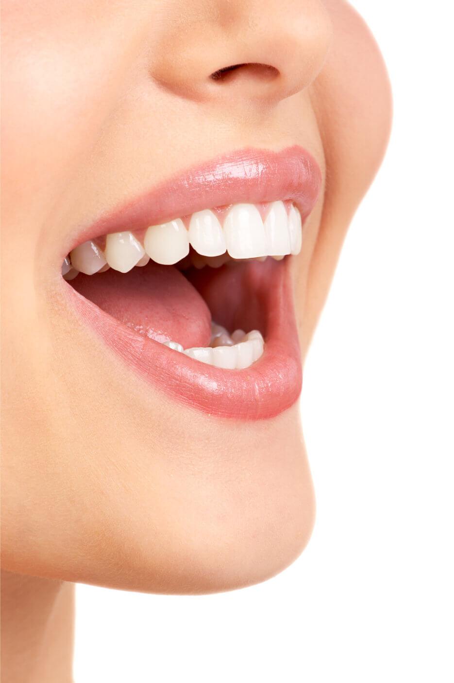 Brickell Dental Associates Veneers