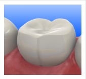 Brickell Dental Associates Tooth Colored Fillings