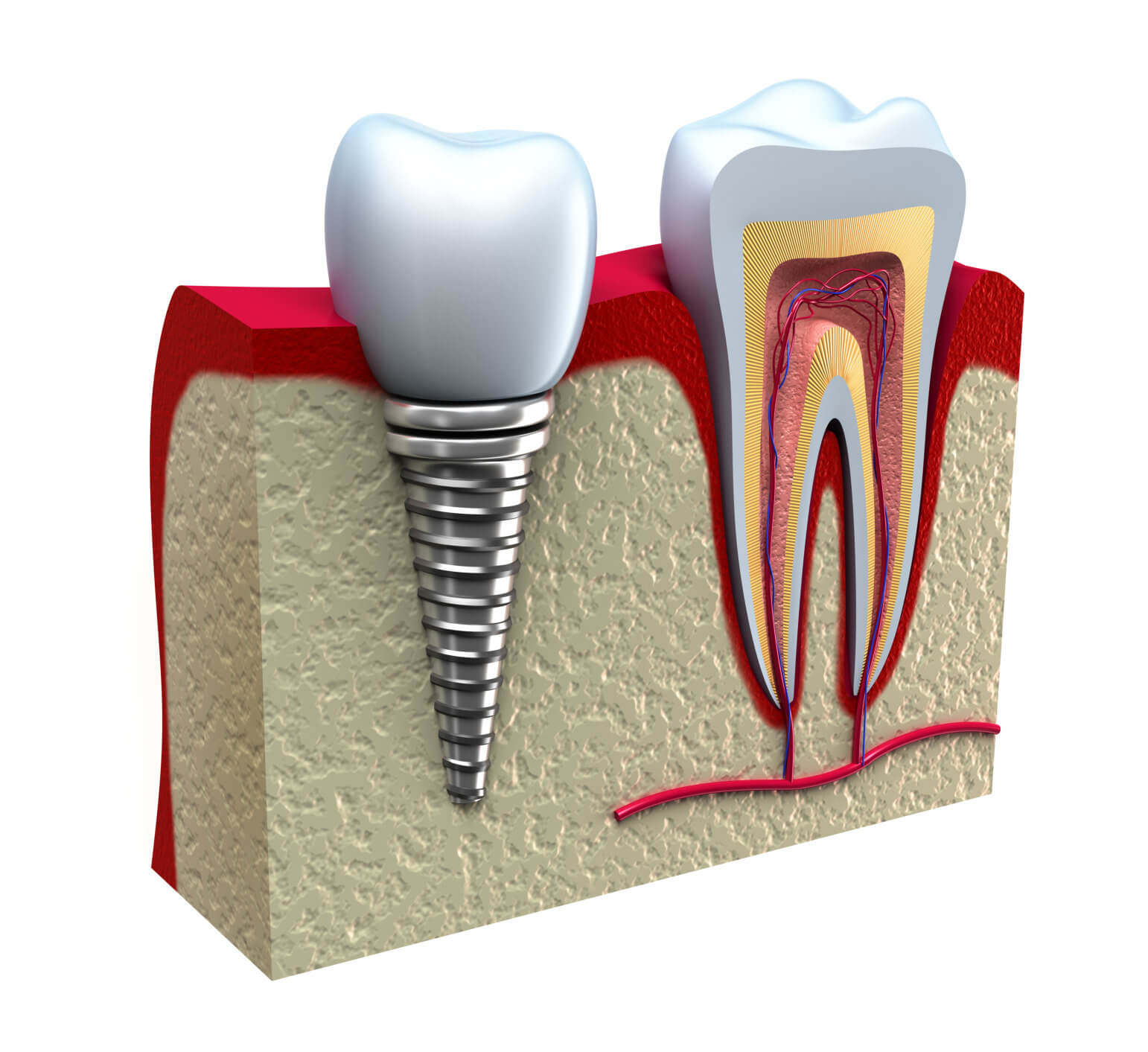 Brickell Dental Associates dental implants