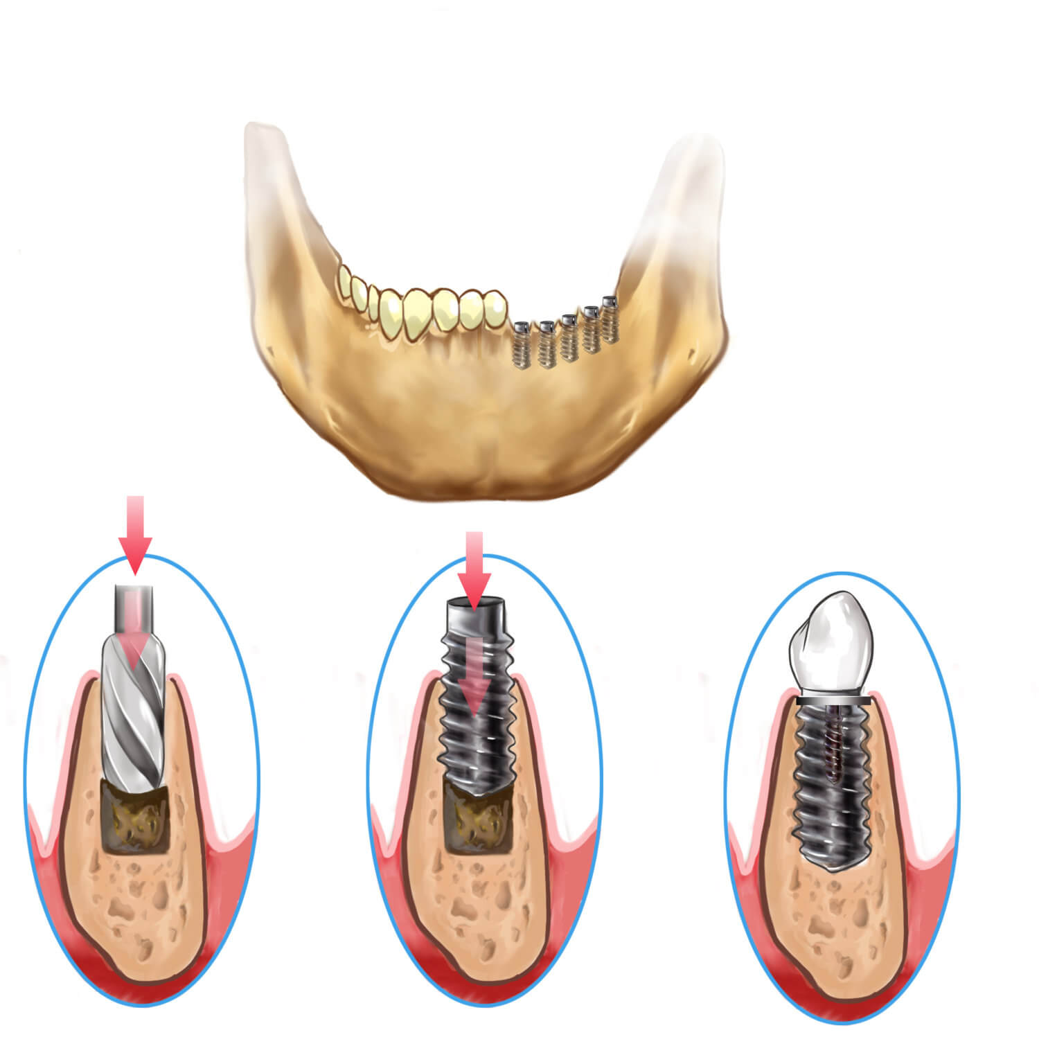 Brickell Dental Associates dental implants