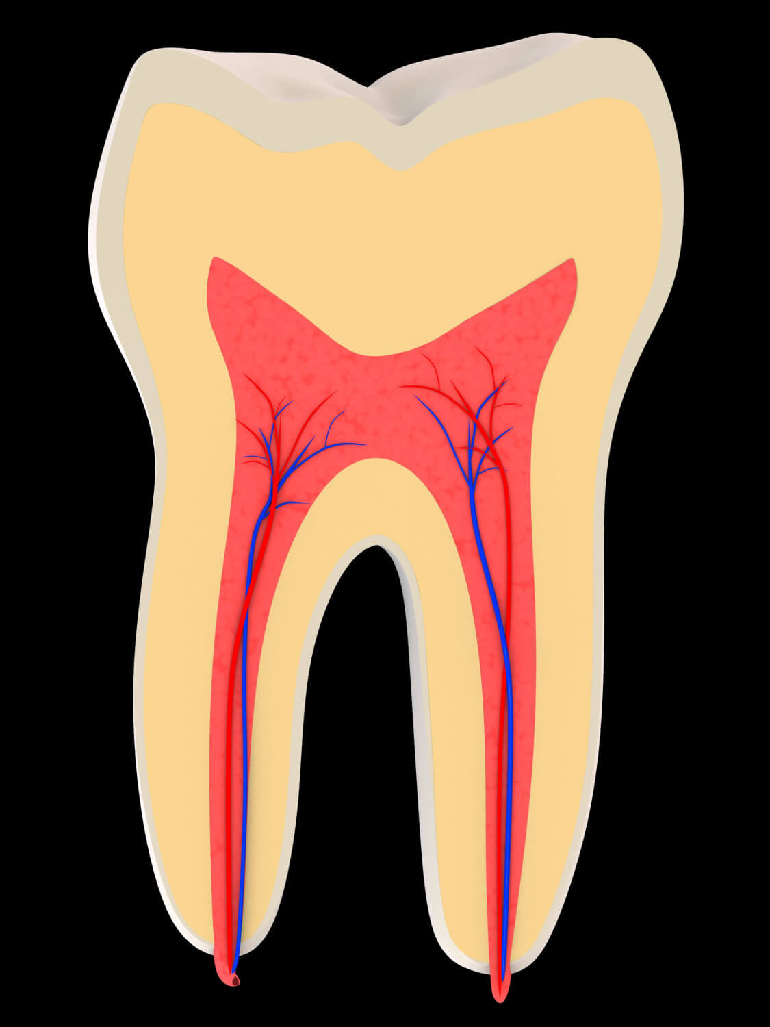 Brickell Dental Associates root canal