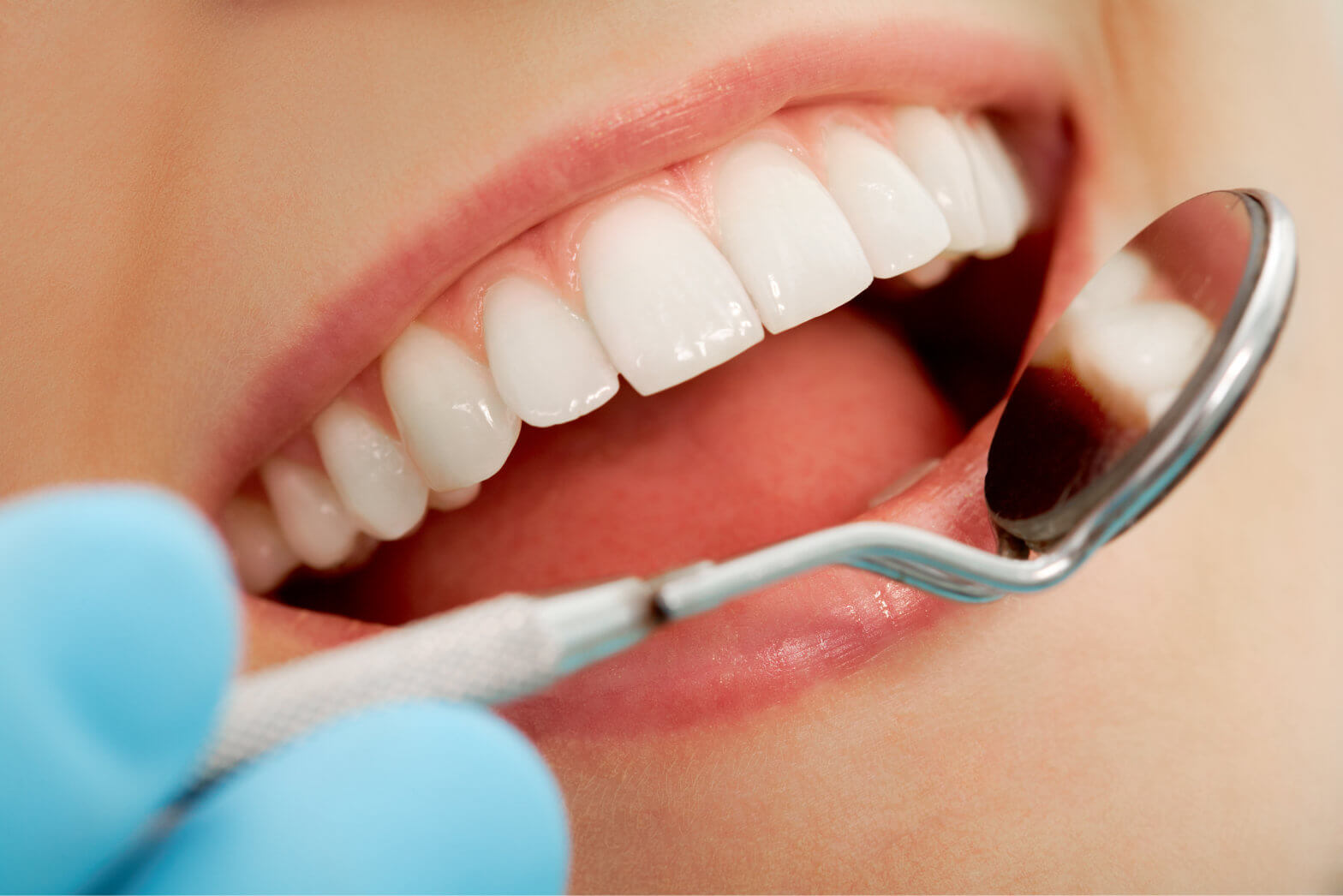 Brickell Dental Associates, Dental Sealants